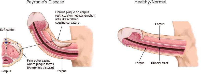 penis curvature